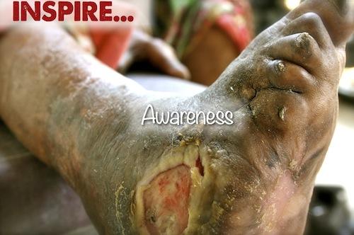 Inspire Awareness...